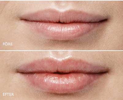 Aumento y relleno de labios en Dénia