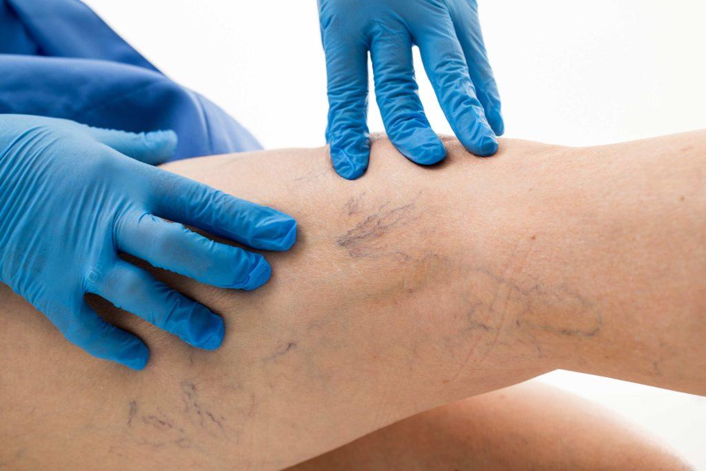 varices tratamiento